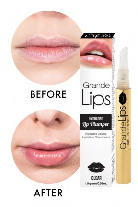 elle lipinjection beforeafter grandelips for attractive lips