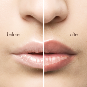 attractive lips after lip plumper use